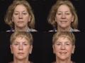 Blepharoplasty 6