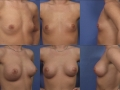 Breast augmentation 10