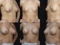 Breast augmentation 11