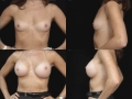 Breast augmentation 14