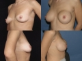 Breast augmentation 16