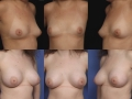 Breast augmentation 19
