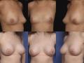 Breast augmentation 19