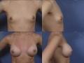 Breast augmentation 22