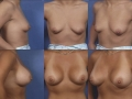 Breast augmentation 8
