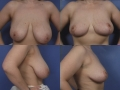 Breast lift 4