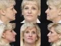 Facial Chemical peel 1