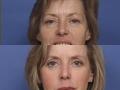 Facial Chemical peel 2
