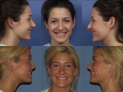 1-plastic-surgery