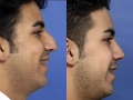 rhinoplasty-8