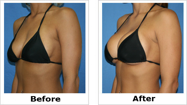 Breast augmentation a to c
