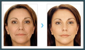 Hyaluronic Acid Filler